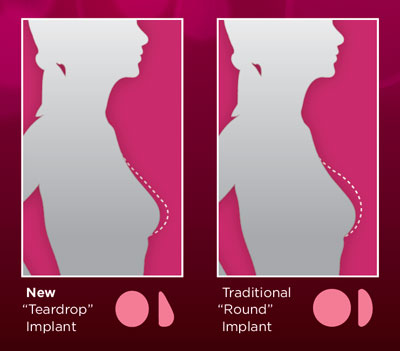 Teardrop breast augmentation and enlargement
